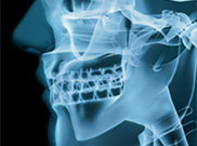Low Radiation Dental X-rays Bowling Green KY